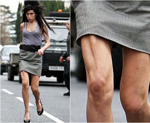 amy-winehouse-boney-leg.jpg